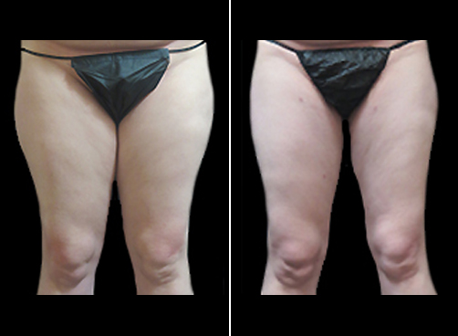 Liposuction Surgery And Mommy Makeover Results