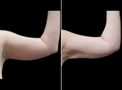 Lipo Surgery & Mommy Makeover Before And After
