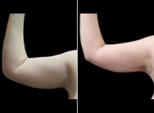 Lipo Surgery And Mommy Makeover Before And After
