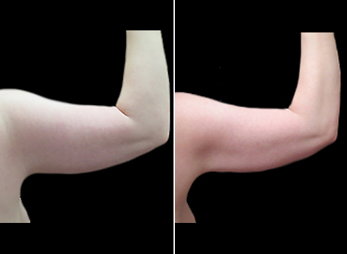 Lipo Surgery & Mommy Makeover Before & After