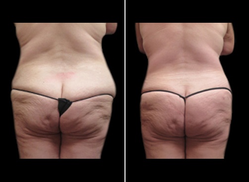 Before & After Lipo Surgery & Mommy Makeover