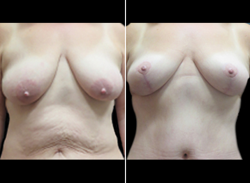 Lipo Surgery & Mommy Makeover Results