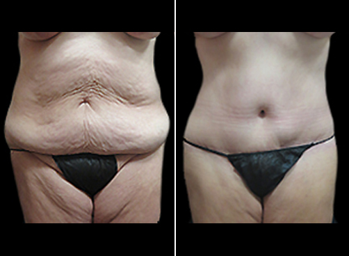 Before And After Lipo Surgery And Mommy Makeover