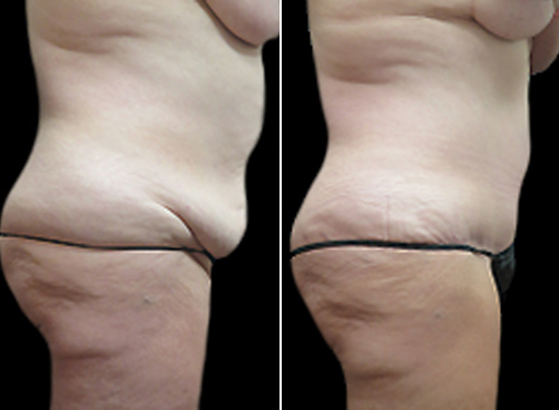 Before And After Lipo Surgery & Mommy Makeover