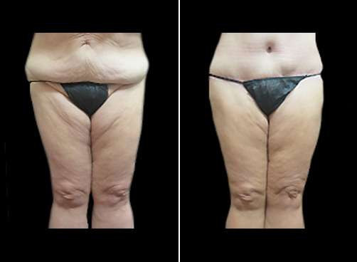 Lipo Surgery And Mommy Makeover Results