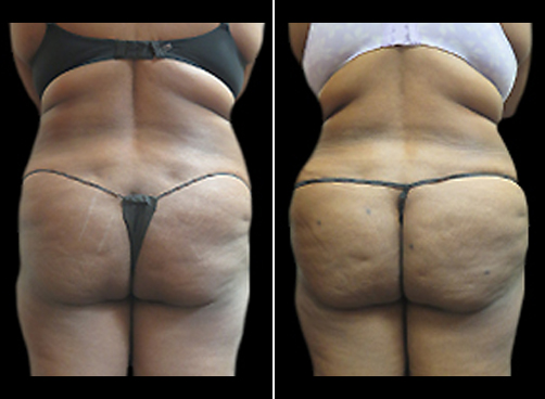Liposuction Treatment & Mommy Makeover Before & After