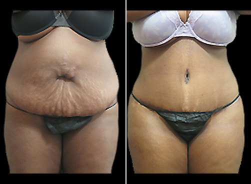 Liposuction Treatment And Mommy Makeover Before And After