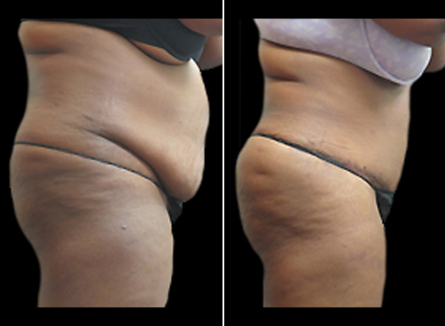 Liposuction Treatment And Mommy Makeover Before & After