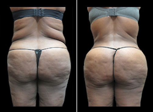 Liposuction Treatment & Mommy Makeover Results