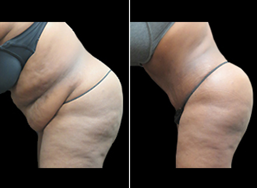 Liposuction Treatment And Mommy Makeover Results