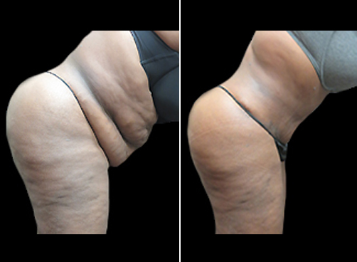 Before & After Liposuction Treatment & Mommy Makeover