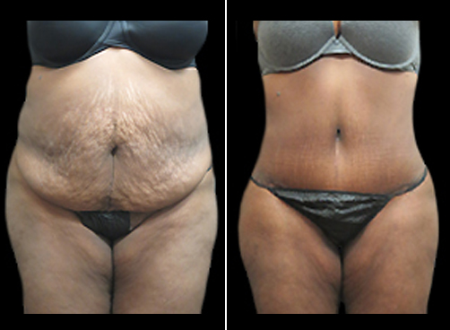 Before And After Liposuction Treatment And Mommy Makeover