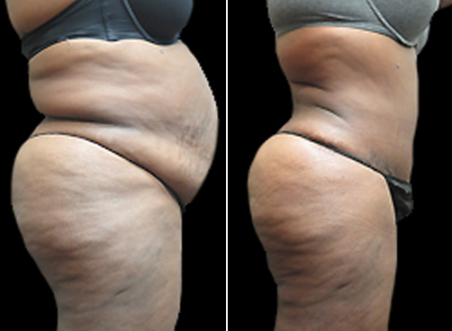 Before And After Liposuction Treatment & Mommy Makeover