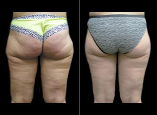 Before And After Lipo Treatment And Mommy Makeover