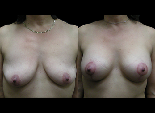 Before And After Lipo Treatment & Mommy Makeover