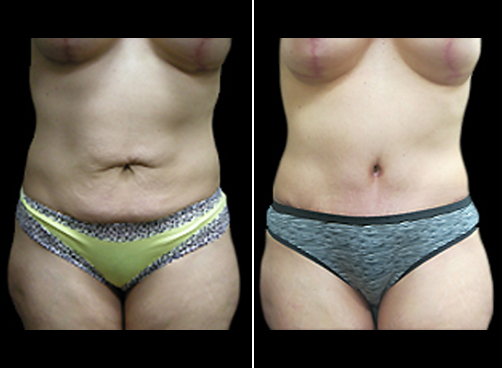 Lipo Treatment And Mommy Makeover Before And After