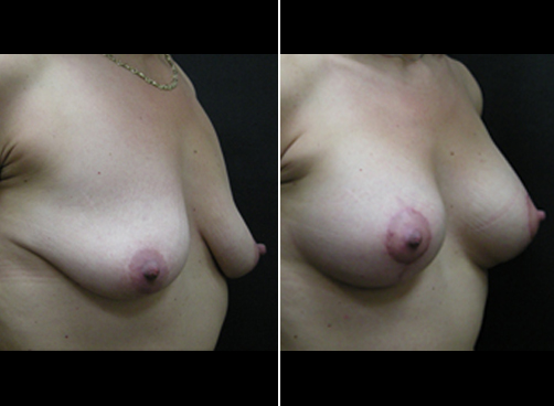 Before & After Lipo Treatment And Mommy Makeover
