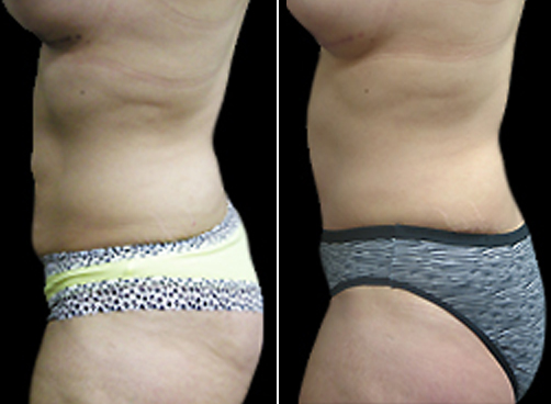 Lipo Treatment & Mommy Makeover Before And After
