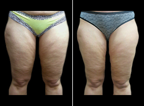 Lipo Treatment & Mommy Makeover Before & After