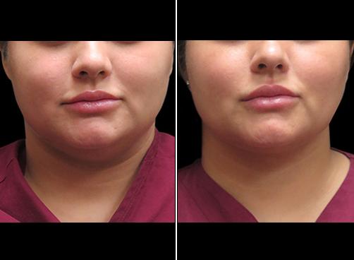 Laser Necklift Treatment Before & After