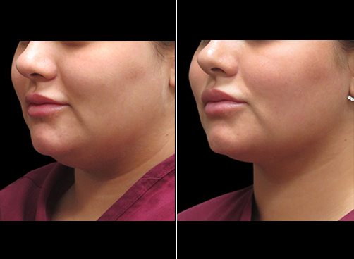 Laser Necklift Surgery Results