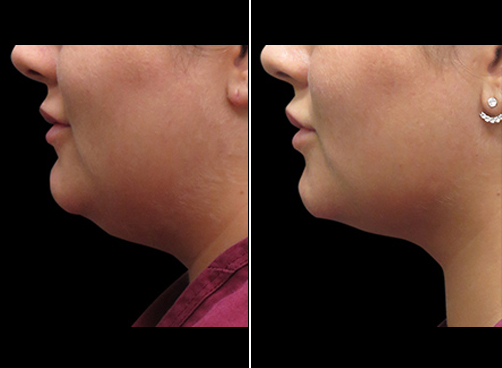 Laser Necklift Surgery Before & After