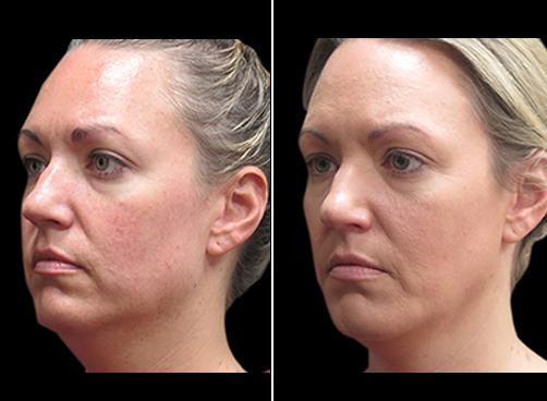 Before & After Laser Necklift