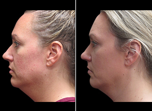 Before And After Laser Necklift In NYC