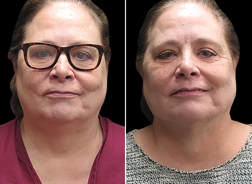 Laser Necklift Before And After In NYC