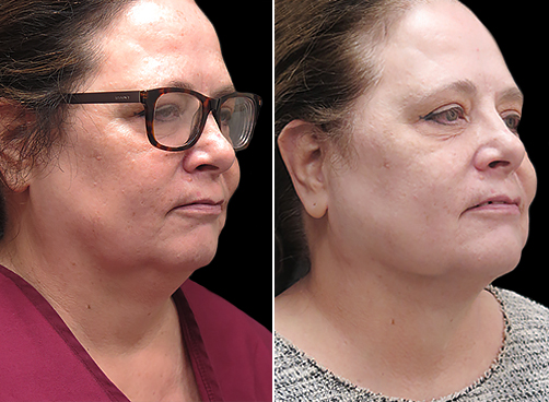 Laser Necklift Lift Before & After In NYC