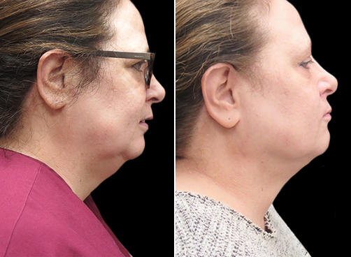 Laser Necklift Lift Results In NYC