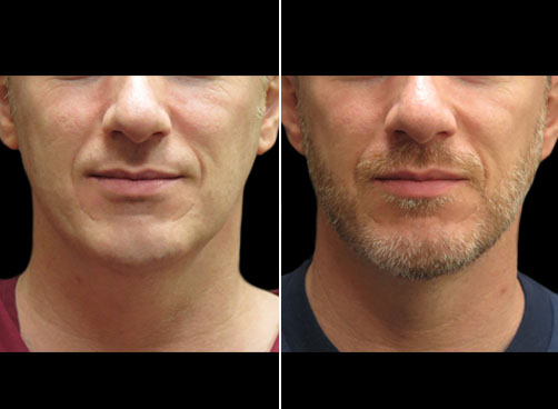 Liposuction Treatment For Men Results