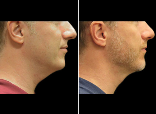 Lipo Treatment For Men Before And After