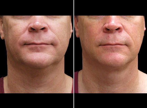 Before And After Lipo Treatment For Men