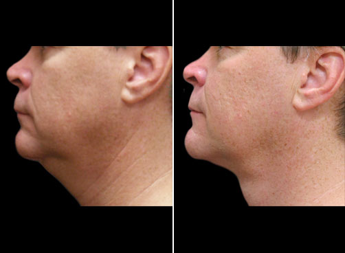Before & After Lipo Treatment For Men