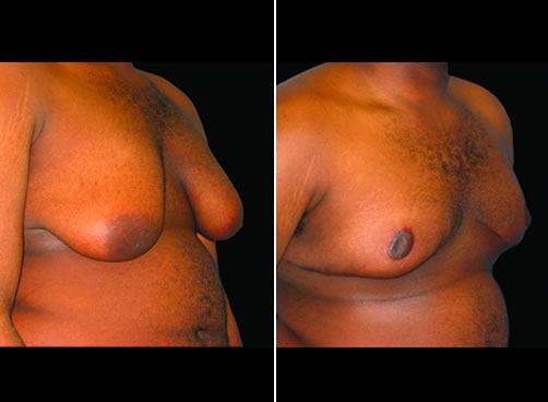 Male Breast Lipo Surgery Before And After Side Image