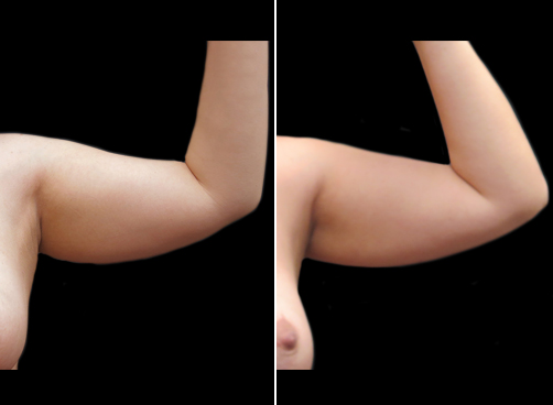 Arm Lipo Before And After