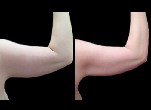 Before & After Arm Liposuction