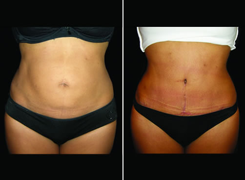Lipo And Mommy Makeover Before And After Front View