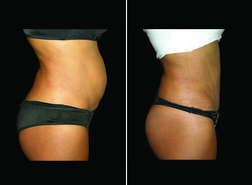 Lipo And Mommy Makeover Before And After Right Side Image