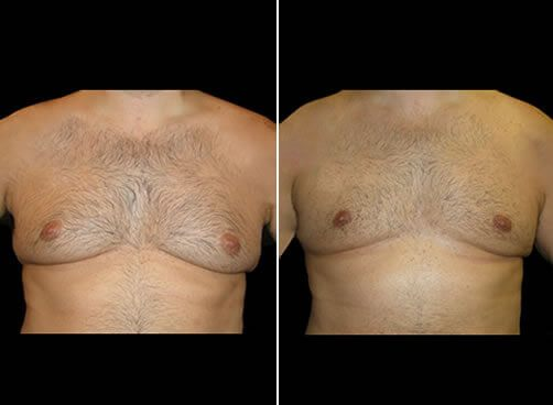 Gynecomastia Before And After Front View
