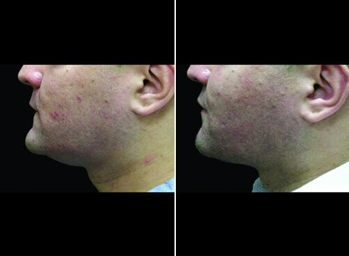 Neck Lipo For Men Before And After