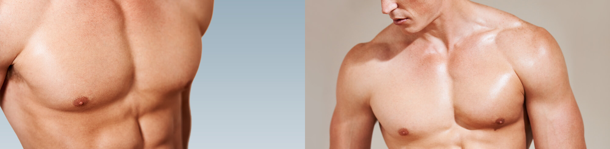 Liposuction And Gynecomastia